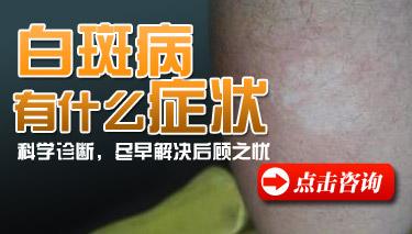 昆明治疗青少年白癜风医生介绍白癜风症状